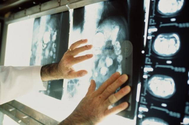 Поздние формы рака в Волгограде выявляют реже, чем в ЮФО