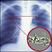 Волгоградские фтизиатры выявляют туберкулез за сутки